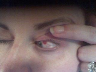 oy-my-eye.jpg